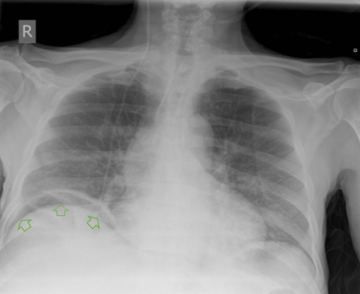 Diagnostic Imaging X Ray Ct Scan In Integrated Pulmonary Pathology