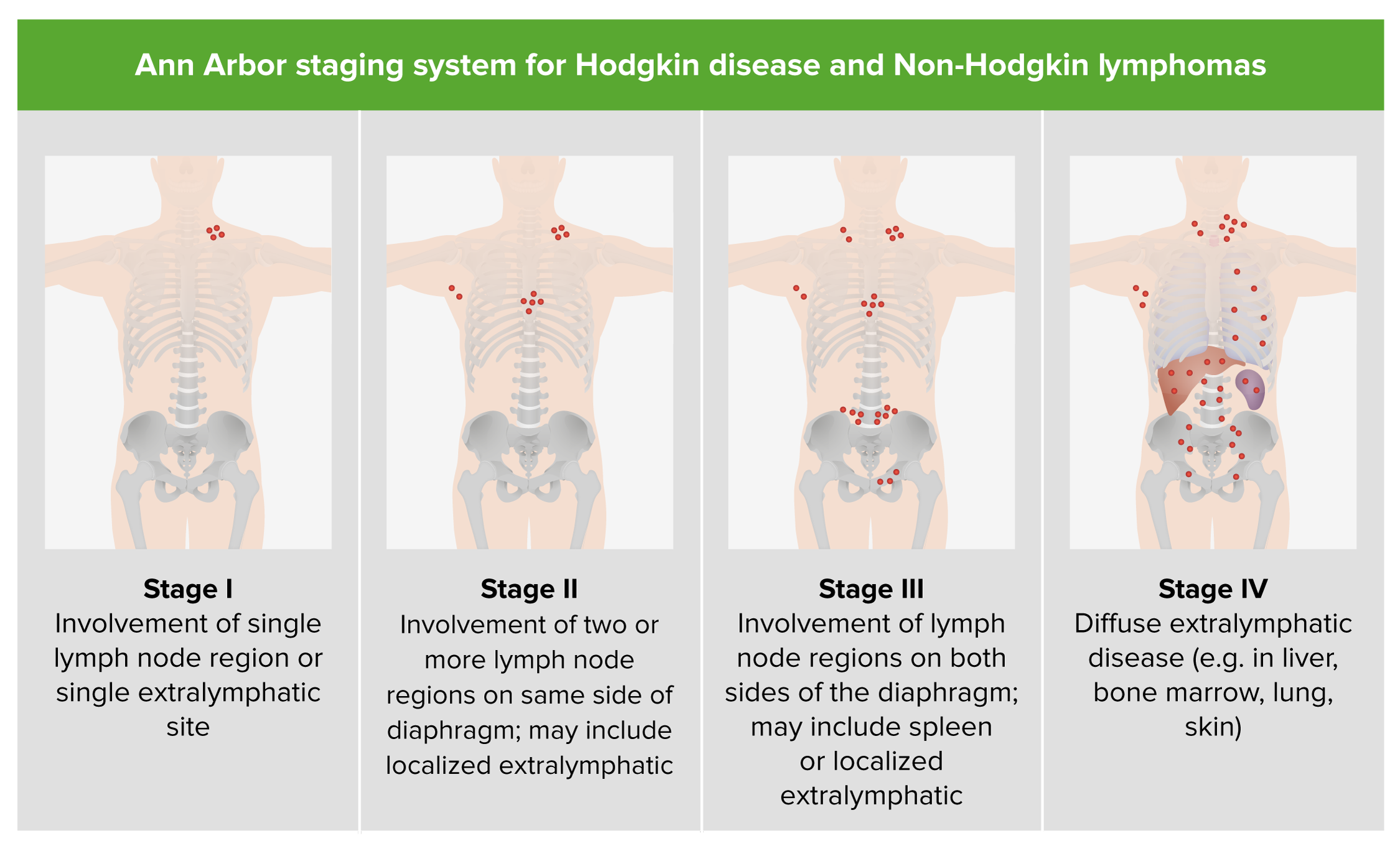 hodgkin's lymphoma - photo #44