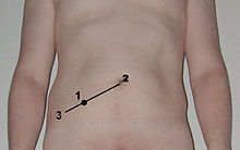 Location of McBurney's point illustrated on the abdomen of a male subject.