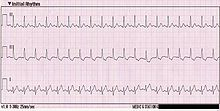 tachycardia-ecg