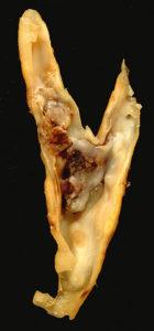 Carotid plaque