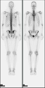 246px-Nl_bone_scan2