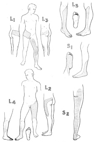 Dermatomes of the lower limb