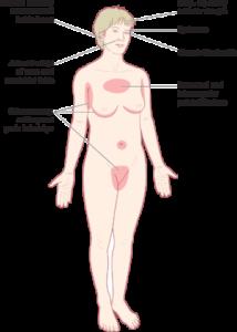 Seborrhoeic eczema