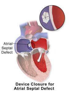 atrial septal defect device closure