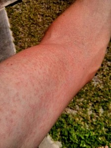 Rash on an arm due to Zika virus