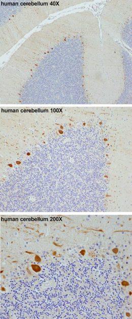 immunohistochemistry in human cerebellum nerve tissue