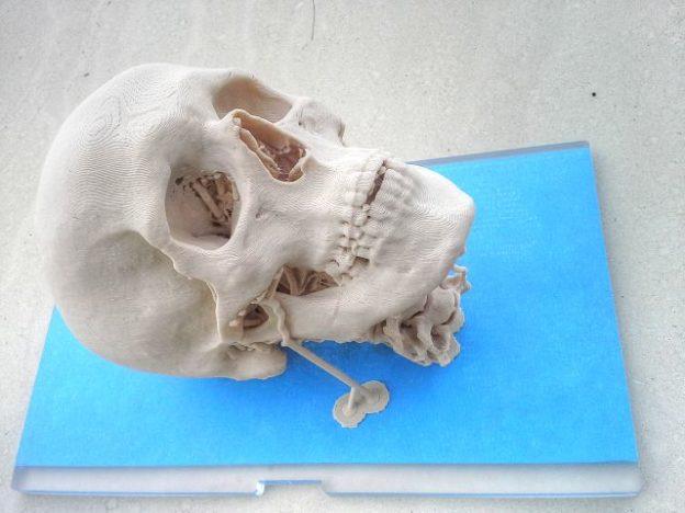 Craniosynostosis