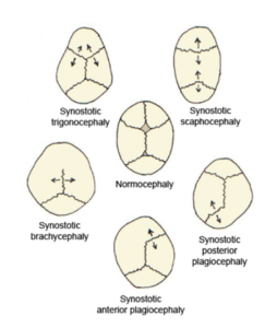 Skull deformities associated with single suture synostosis