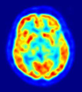 PET-image-CT-scan