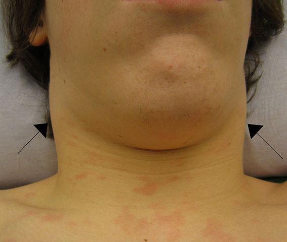 Lymphadanopathy