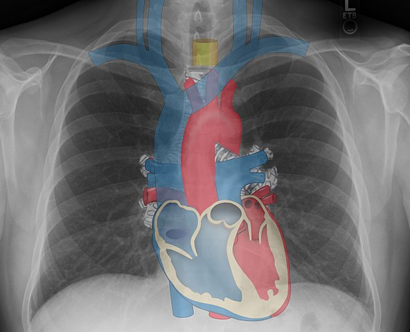 Mediastina structures_on_chest_X-ray