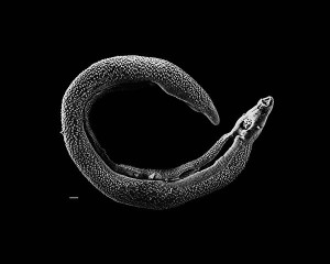 Electron micrograph of an adult male Schistosoma parasite worm