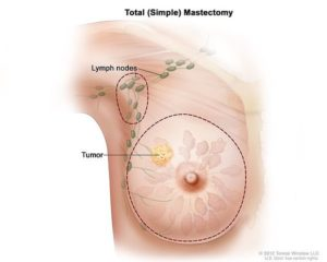 total mastectomy