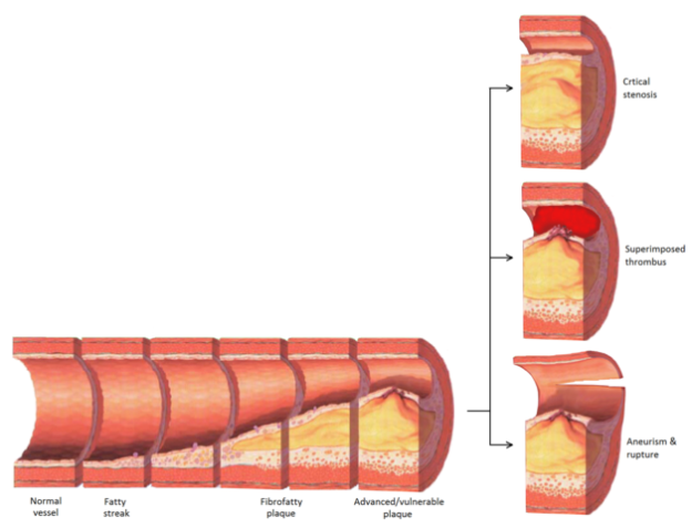 Late complications of atherosclerosis