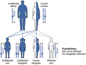 X-linked-Recessive-Inheritance-hemophelia