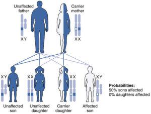 X-linked-Recessive-Inheritance-hemophelia