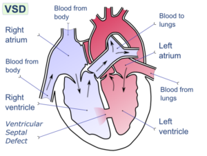 Ventricular-septal-defect-cardiac-diseases