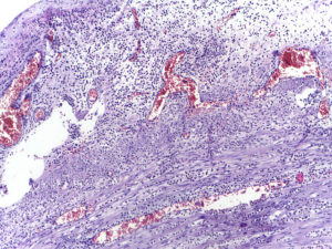 histological picture of acute inflammation