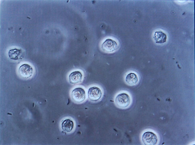 Bacteriuria-pyuria-bladder-infection