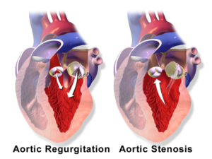 aorticvalve regurgitation and -stenosis