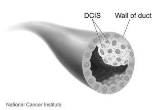 breast cancer ductal carcinoma in situ