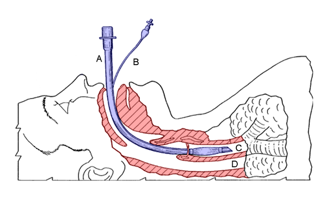 Diagram of an inserted endotracheal tube