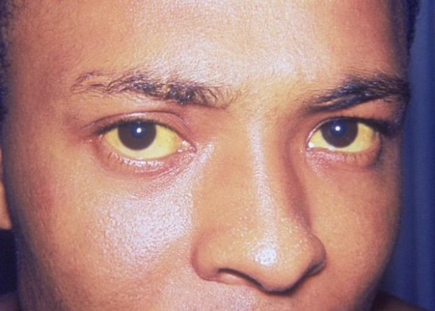 Jaundice eye bilirubin biliverdin reductase