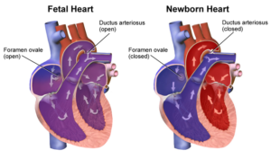 changes in newborn heart
