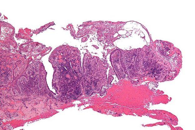 Pemphigus-vulgaris