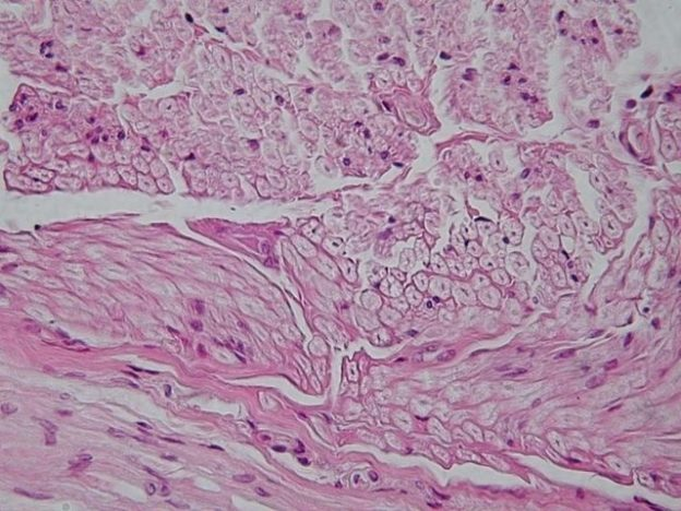 Peripheral nerve cross section nerve tissue