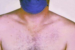 Salmonella typhi typhoid fever rose spots