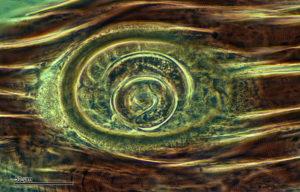 trichinella spiralis in muscle tissue