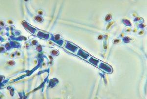 Trichophyton rubrum var. rodhaini