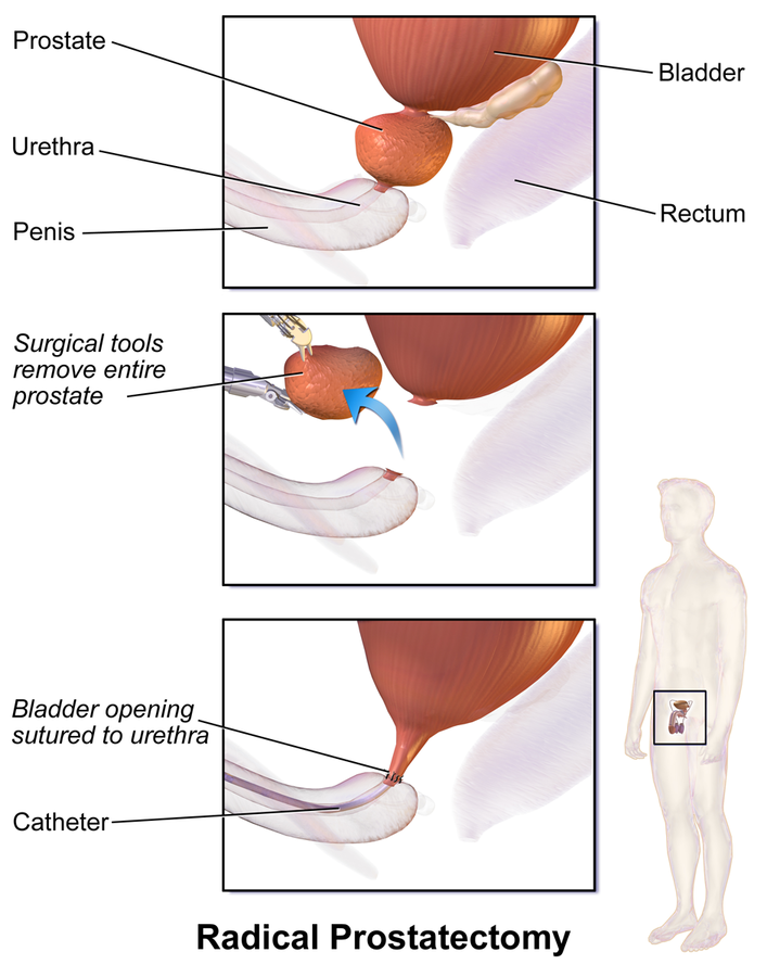 Prostate-Removal