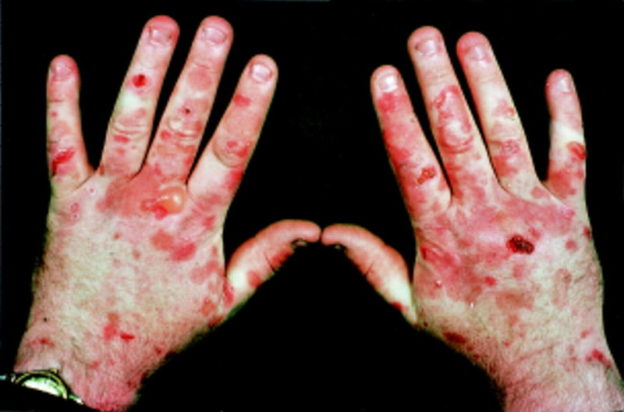 Cutaneous-porphyria