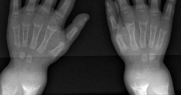 wrist x-ray rickets