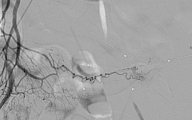 angiography of a meckel's diverticulum that presented with bleeding