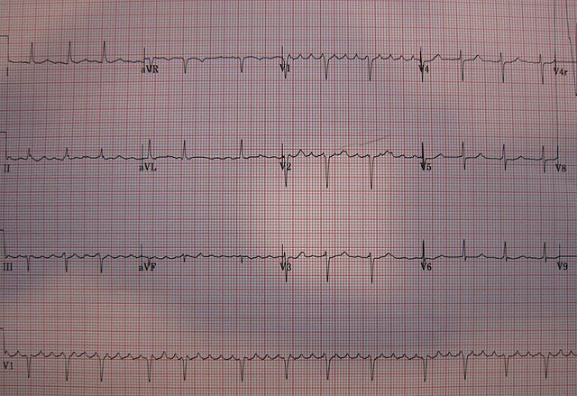 A 12 lead ECG showing atrial flutter