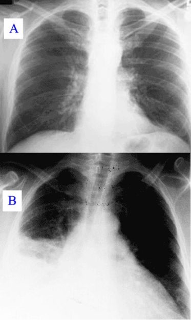 A normal chest radiograph and radiograph with Q fever pneumonia.