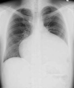 Arterial-Septal-Defect-Chest-X-Ray