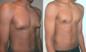 adolescent with gynecomastia