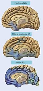 alzheimers disease progression of brain degeneration