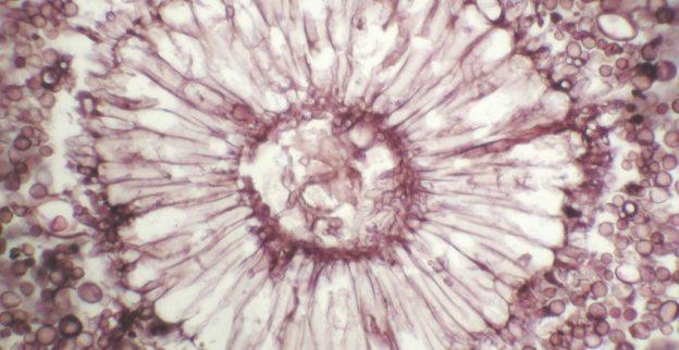 Aspergillus conidial head