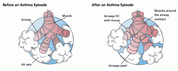Asthma-before-after