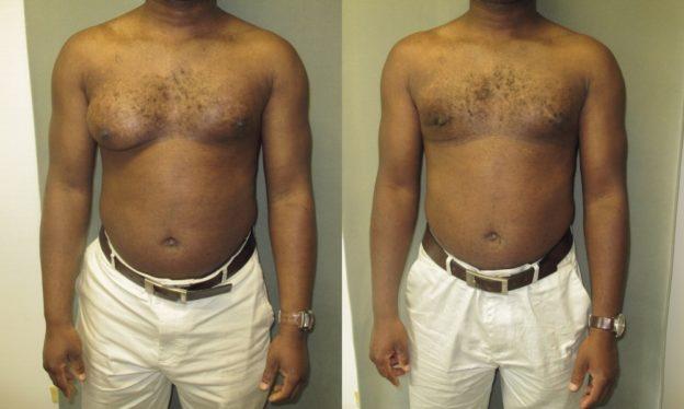 asymmetrical gynecomastia