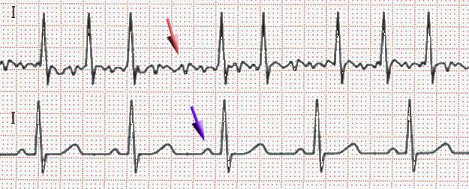 Atrial fibrillation (red arrow) and sinus rhythm (blue arrow)