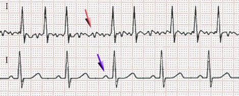 Atrial fibrillation (red arrow) and sinus rhythm (blue) schematicall