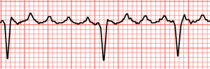 Atrial flutter with variable block
