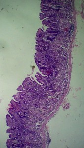 Atrophic gastritis as seen in low zoom micrograph
